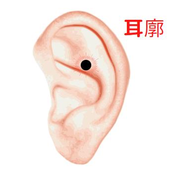 耳廓の位置にある耳ほくろ